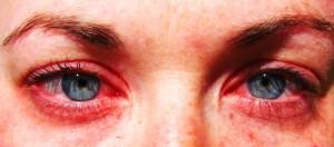 Barcelona allergies